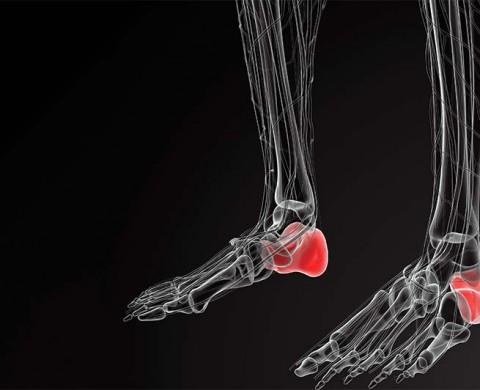 Heel Bone Fracture